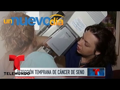 ¡Las mamografías podrían dar falsos casos de cáncer! | Un Nuevo Día | Telemundo