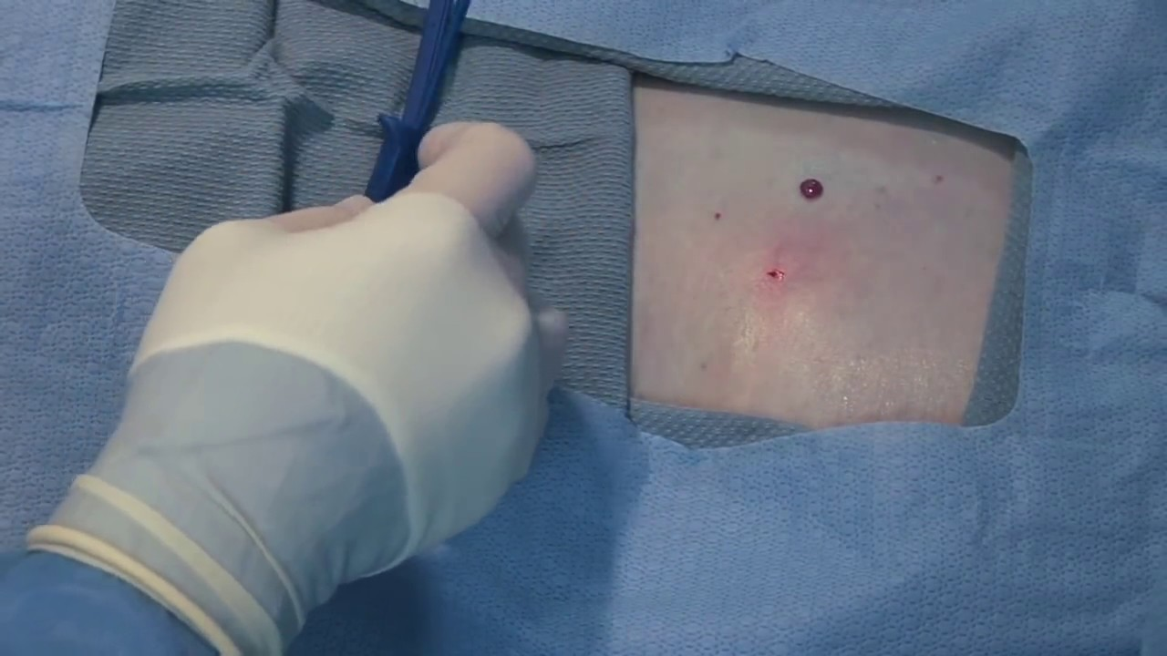 Medtronic Reveal Linq Implant - Infra-mammary approach ...