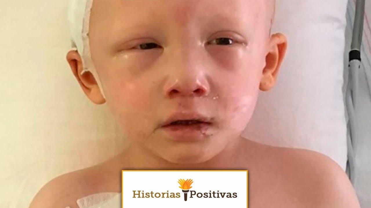cancer de ojos en niños sintomas
