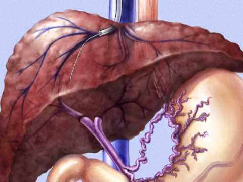transjugulär intrahepatisk portosystemisk shunt