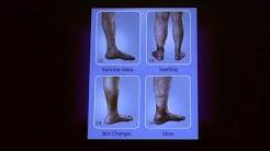 Treatment Options for Superficial Venous Disease | Cheryl Hoffman, MD - UCLA Health