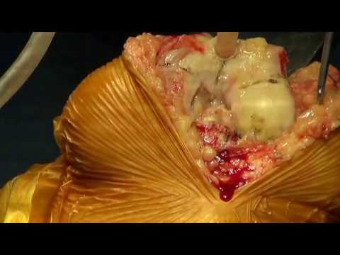 Live Surgery of Total Knee Replacement by Dr Amit Bhutani (720p HD)