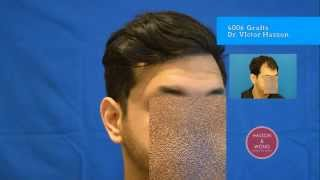Incredible Hair Transplant Before and After Results Dr Hasson 4006 Grafts