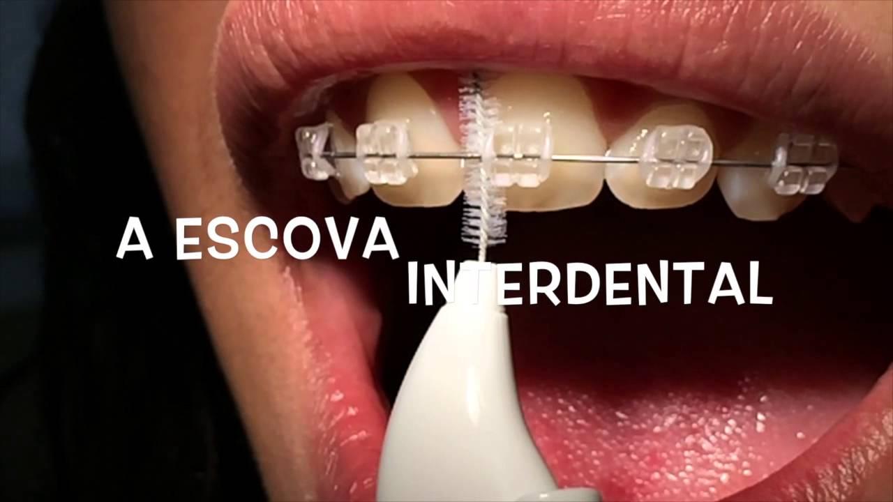 Higienizacao Usando Aparelho Ortodontico Fixo Youtube