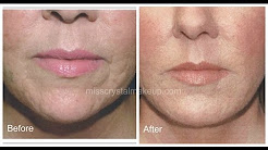 hqdefault - Can Juvederm Fill Acne Scars
