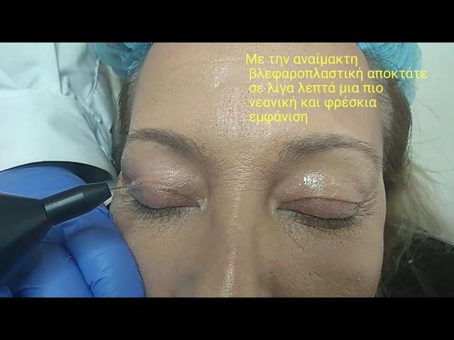 Βλεφαροπλαστική χωρίς πόνο και χειρουργείο- BioLaser.gr