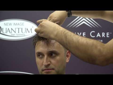 Quantum Sistem Protez Saç Uygulaması Ile Değişimi Yakala...