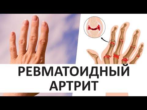 Ревматоидный артрит: лечение суставов народными средствами