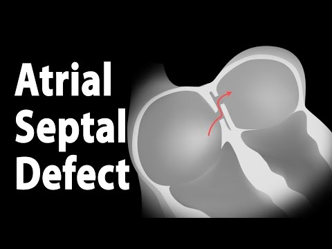 Atrial Septal Defect (ASD), Animation.