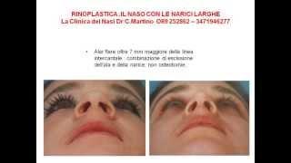 RINOPLASTICA NAPOLI : IL NASO CON LE NARICI LARGHE DR. C. MARTINO