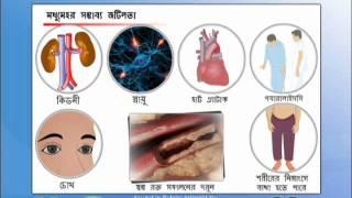 Intro Diabetes Bengali