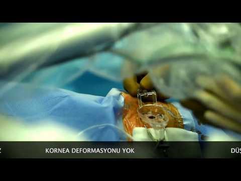 Lazerle katarakt ameliyatı