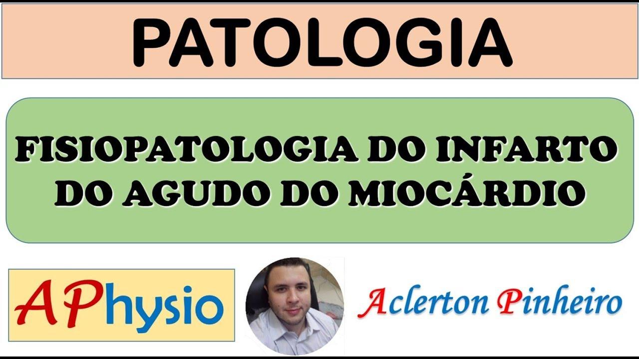 Infarto agudo do miocardio fisiopatologia pdf