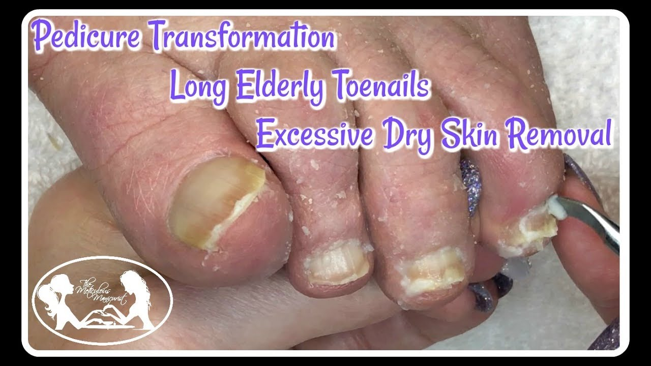 👣 Pedicure Deep Cleaning Excessive Dry Skin from Elderly Toenails and Feet  👣