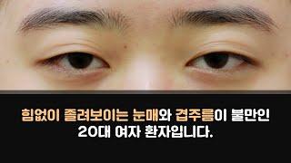 [눈성형연구소] 비씨아이의 20대 여성 눈매교정 케이스…