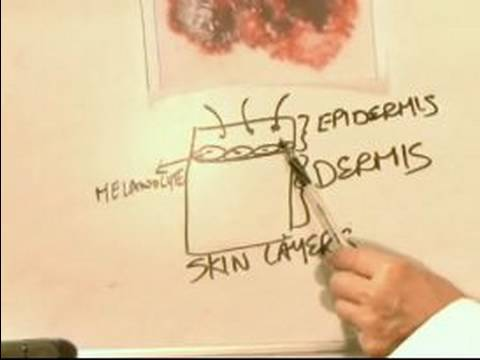 How to Identify Skin Cancer : What Causes Melanoma Skin Cancer?