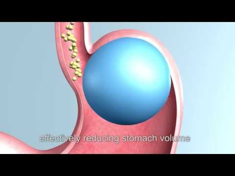 gastric balloon, gastric balloon weight loss, intragastric balloon – Bariatric Surgery, hong kong