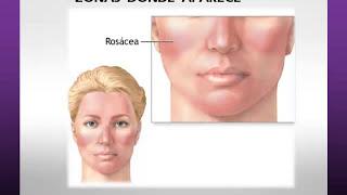 Aloe vera, rosacea y acne en vivo