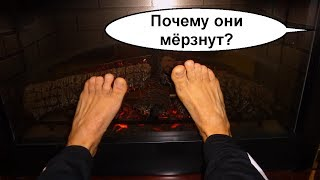 Почему мерзнут и холодные ноги Все неутешительные причины Что делать и к кому бежать 2
