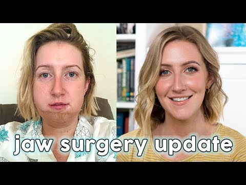 JAW SURGERY UPDATE  Sharon Farrell