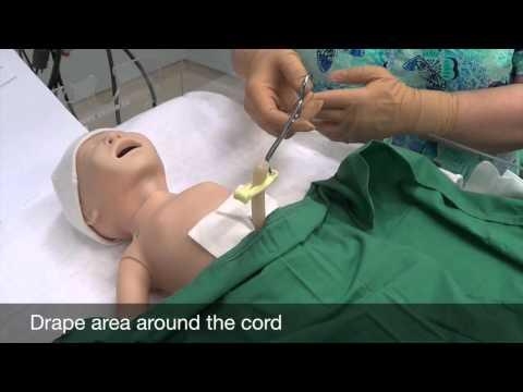 Video 2: Umbilical catheter skin prep