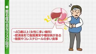 【胆石症】胆石の原因、痛みの症状、予防法