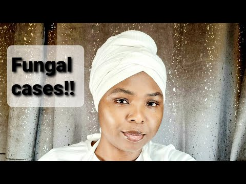 F.UN.GAL WITH NO CURE FOUND!!. THE VISION IS TRUE. WAKE UP CHURCH!! **MUST WATCH AND SHARE**