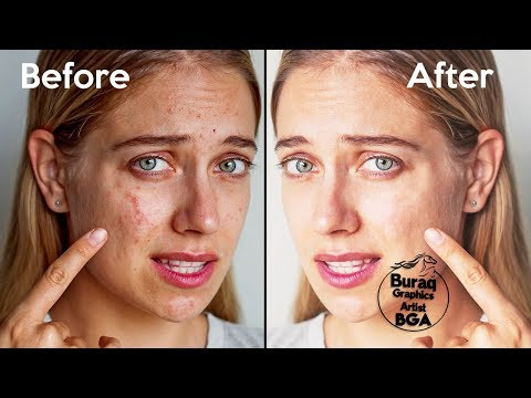 Pimple Removal Photoshop tutorial 2019-Buraq Graphics Artist thumbnail