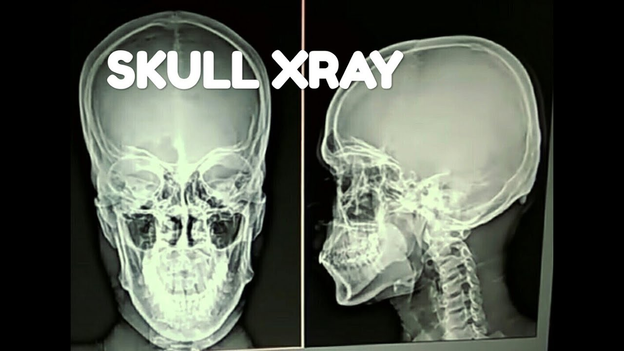 X-RAY OF ALL THE SKULL BONES , ANATOMY AND PHYSIOLOGY PART - 105 ...