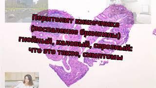 Перитонит кишечника (воспаление брюшины) гнойный, каловый, серозный: что это такое, симптомы