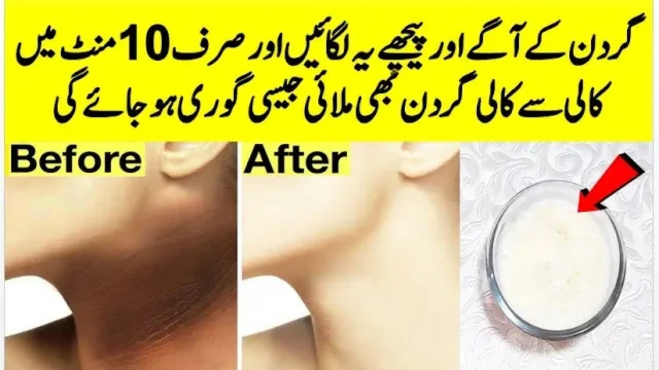 Neck Whitening Special Cream At Home  Neck Care Tips In Urdu