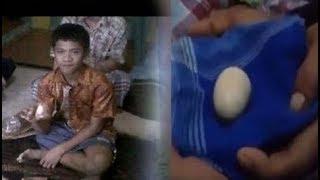 मुर्गी की तरह अंडे दे रहा है ये लड़का,अब तक 20 अंडे दे चुका है, देखकर डॉक्टर को भी आ गया चक्कर