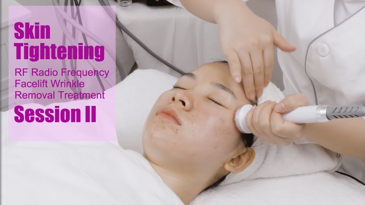 MYCHWAY RF Radio Frequency Facial EMS Electroporation Facelift Wrinkle  Removal Machine Session II