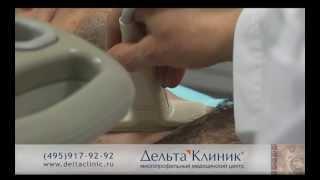 УЗИ щитовидной железы(Записаться на прием к врачу можно по телефону 8-495-917-92-92., 2013-05-06T09:54:38.000Z)