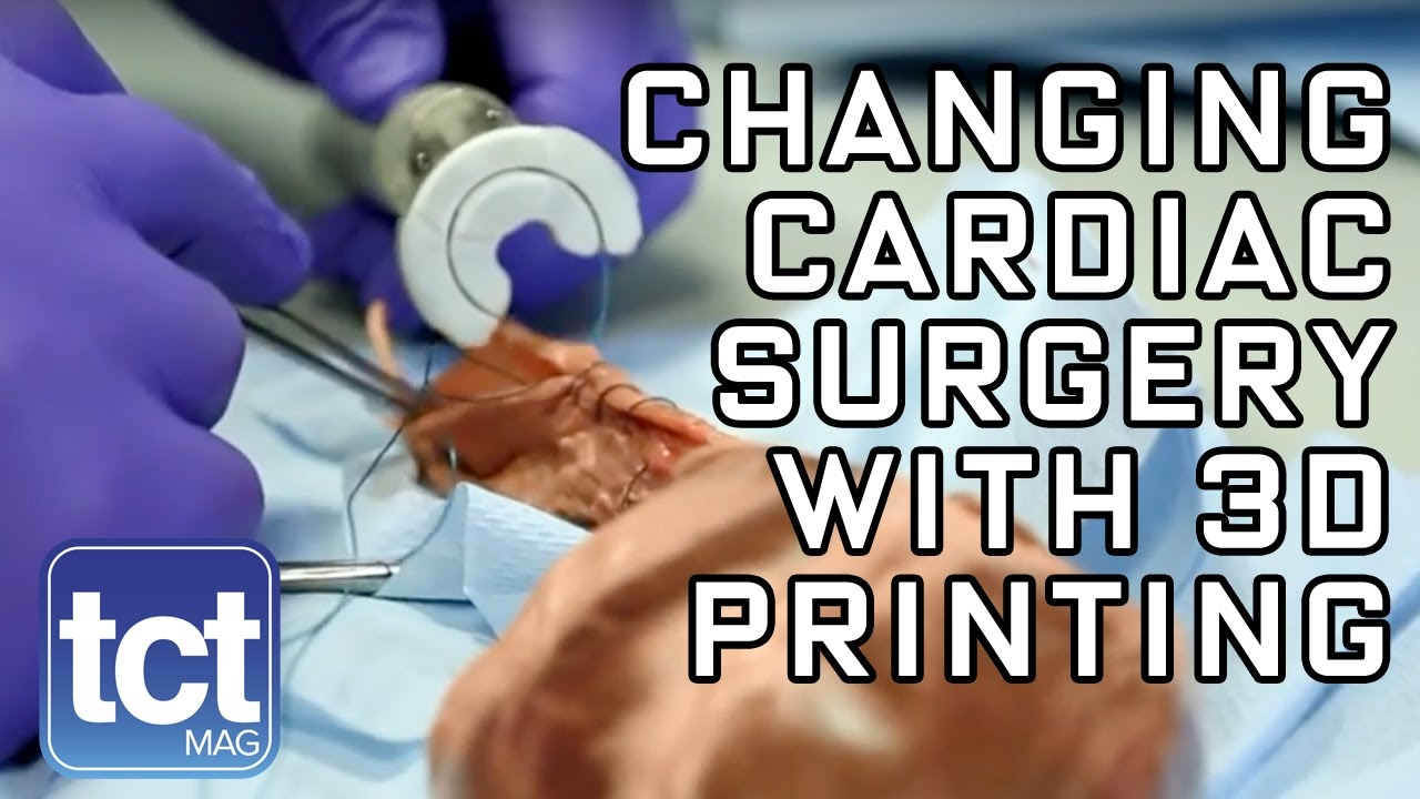 Changing Cardiac Healthcare with 3D Printing - TCT Show 2016 Keynote: Sutrue