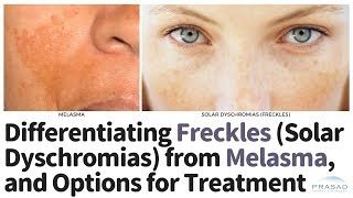 How Freckles can be Treated with Different Types of Lasers, and Differentiating them from Melasma