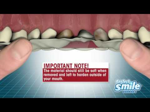 perfect-smile-veneers-instructional---getting-started
