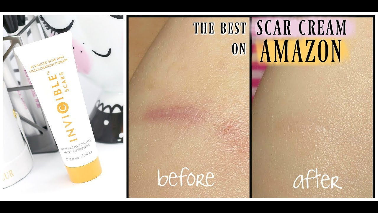 The Best Scar Cream On Amazon Invicible Scars Advanced Scar Treatment Youtube