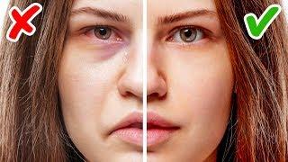 Sağlık Sorununuz Olduğunu Gösteren Yüzünüzde Gizli 11 İşaret