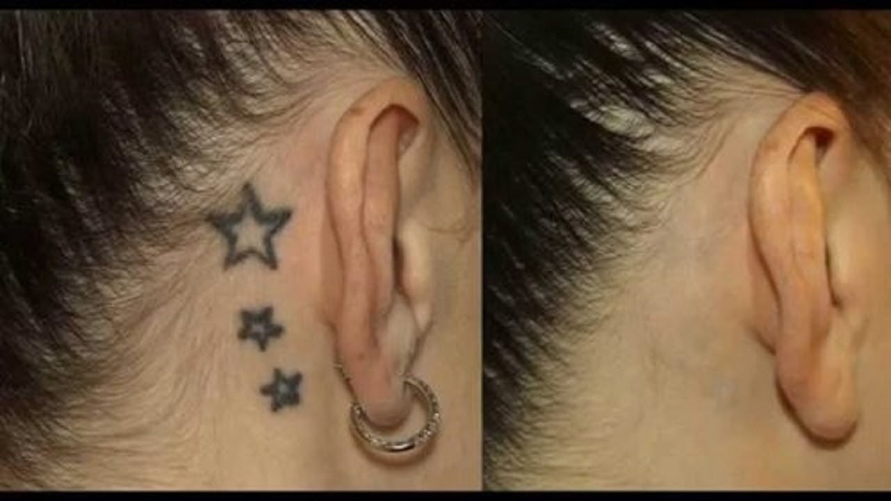 Tattoo Removal Denver - Tattoo Removal Denver- Denver Laser Tattoo Removal
