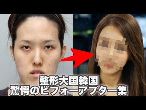 【驚愕】整形大国韓国の衝撃ビフォーアフター集【整形美人】