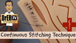 continuous suturing technique
