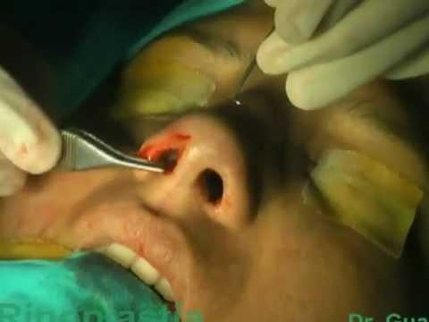 Rinoplastía con poste - Cirugia de nariz - Lima Peru - Dr Guanilo