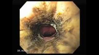 The Black Esophagus Acute esophageal necrosis