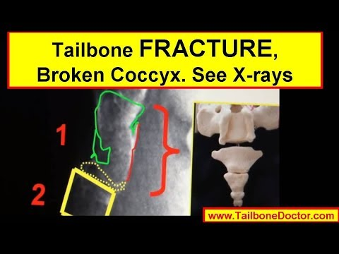X-rays showing COCCYX FRACTURE (broken tailbone) - YouTube
