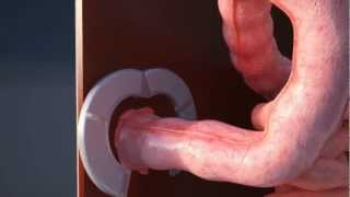A revolution in ostomy device design - StomaLife