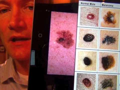 Scaly Mole Cancerous