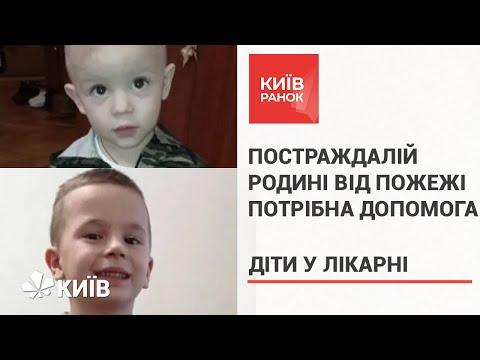 Родина постраждалих дітей від пожежі просить про допомогу
