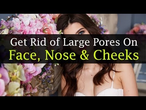 Get Rid Of Large Pores On The Face, Nose & Cheeks