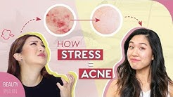 hqdefault - How To Control Acne From Stress